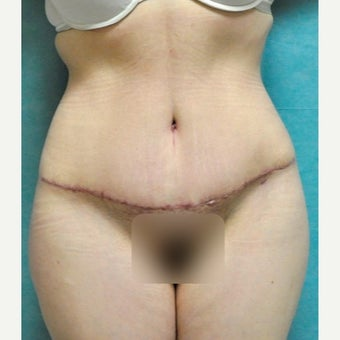 Circumferential Tummy Tuck after 2340390
