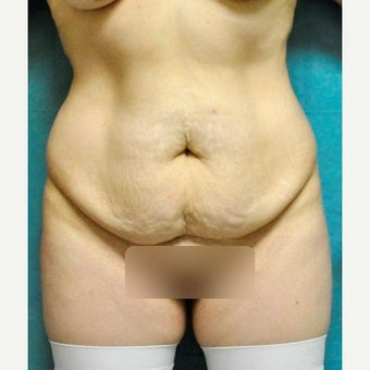 Circumferential Tummy Tuck before 2340390