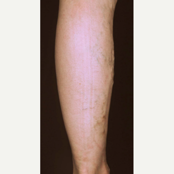 55-64 year old woman treated with Vein Treatment before 3537682
