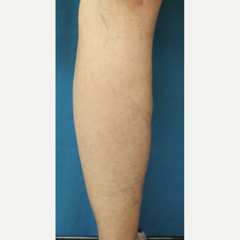 55-64 year old woman treated with Vein Treatment after 3537682