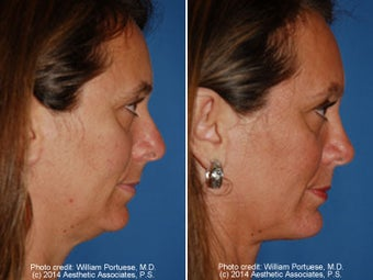 Neck Liposuction before 1389719