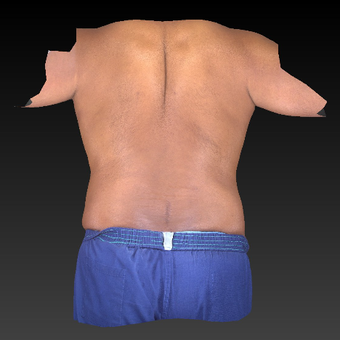 35-44 year old man treated with Liposuction after 3783755
