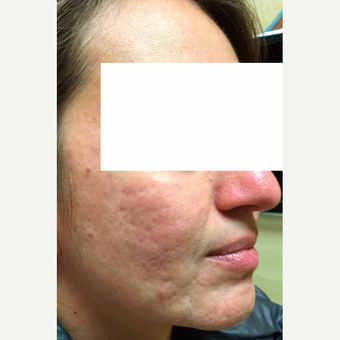 25-34 year old woman treated with VBeam Perfecta Laser Acne Treatment
