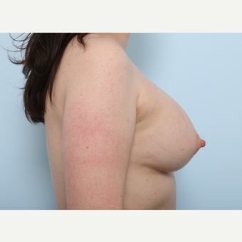 Breast Augmentation after 3345401