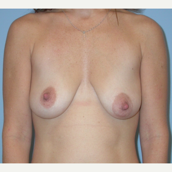 25-34 year old woman treated with Breast Implants before 3070967