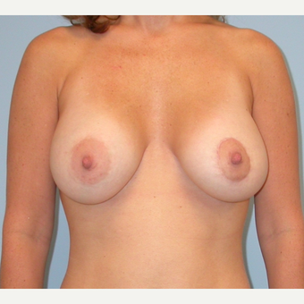 25-34 year old woman treated with Breast Implants after 3070967