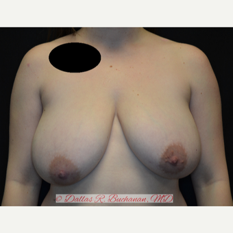 28 year old woman treated with Breast Reduction before 3072957