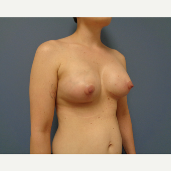 25-34 year old woman treated with Breast Lift with Implants after 3737987