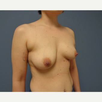 25-34 year old woman treated with Breast Lift with Implants before 3737987