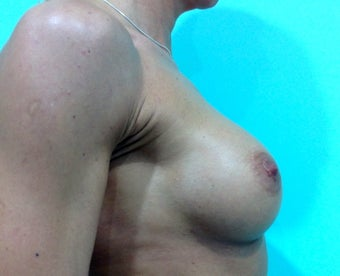 Macroane Breast Augmentation 1243732
