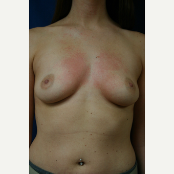 25-34 year old woman treated with Breast Augmentation before 3110104