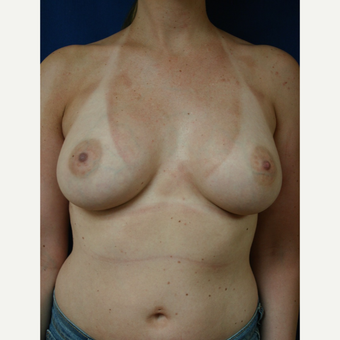 25-34 year old woman treated with Breast Augmentation after 3110104