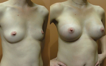 Breast Implants before 974265