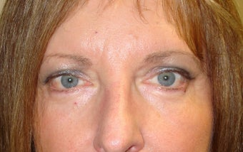 Brow lifting (endoscopic), Quad-blepharoplasty, Chemical peel after 332404