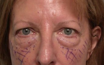 Brow lifting (endoscopic), Quad-blepharoplasty, Chemical peel before 332404