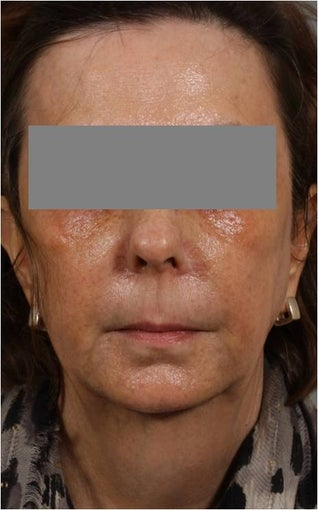 53 Year Old female with loss of cheek volume, hollowness under her eyes, nasolabial folds, and sagging jowls and neck.  J before 1150680