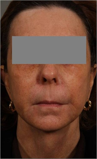 53 Year Old female with loss of cheek volume, hollowness under her eyes, nasolabial folds, and sagging jowls and neck.  J after 1150680
