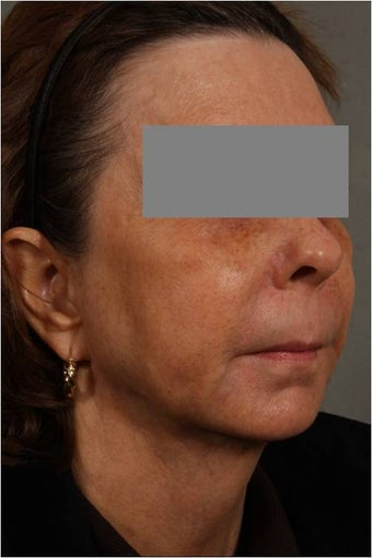 53 Year Old female with loss of cheek volume, hollowness under her eyes, nasolabial folds, and sagging jowls and neck.  J 1150680