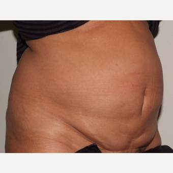 A 60 something has a tummy tuck before 3109579