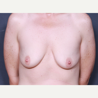 38 year old woman treated with Breast Lift with Implants before 3277882