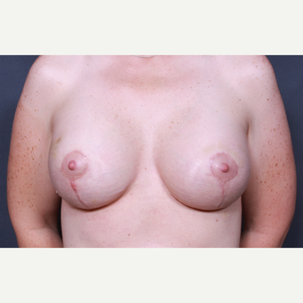 38 year old woman treated with Breast Lift with Implants after 3277882