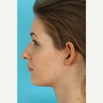 25-34 year old woman treated with Rhinoplasty before 3629425