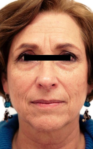 56 year old woman treated with Eye Bags Treatment 3418488