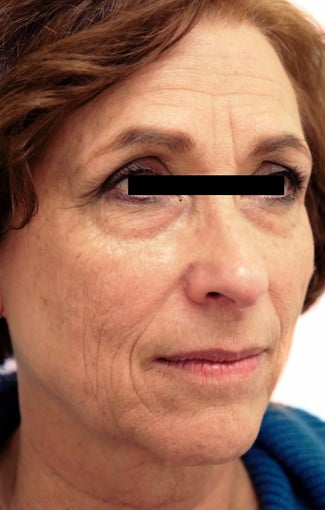 56 year old woman treated with Eye Bags Treatment before 3418488