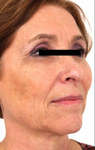 56 year old woman treated with Eye Bags Treatment after 3418488