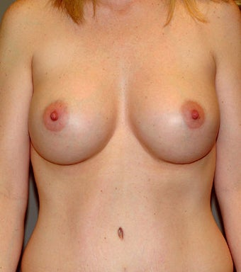 Breast Implants after 631431