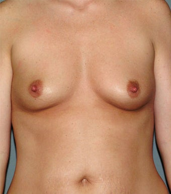Breast Implants before 631431