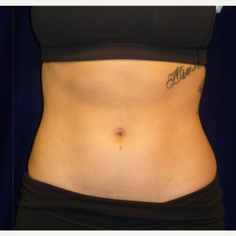 25-34 year old woman treated with SculpSure after 3164693
