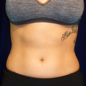 25-34 year old woman treated with SculpSure before 3164693