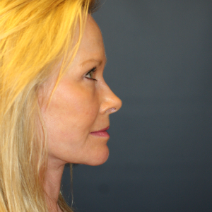 55-64 year old woman treated with Facelift after 3554118