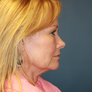 55-64 year old woman treated with Facelift before 3554118