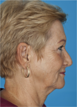 65 yo female with excessive wrinkles to the face