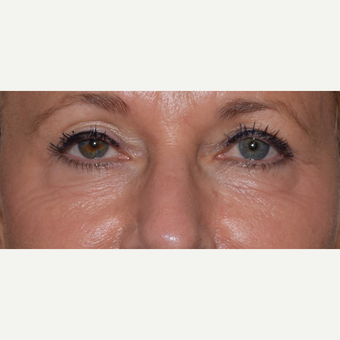 45-54 year old woman treated with Radiesse for under eye aging before 3657464