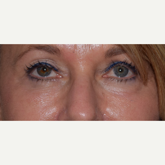 45-54 year old woman treated with Radiesse for under eye aging after 3657464