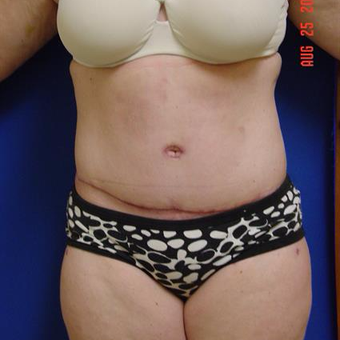 35-44 year old woman treated with Tummy Tuck after 3288383