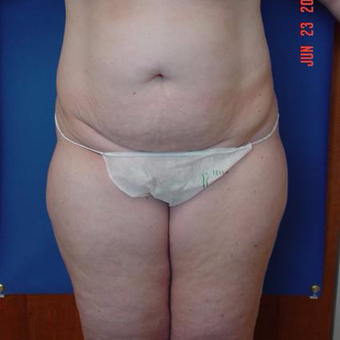 35-44 year old woman treated with Tummy Tuck before 3288383