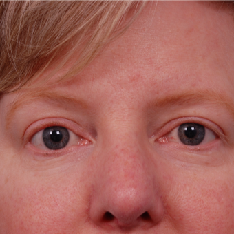 45-54 year old woman treated with Eyelid Surgery after 3168762