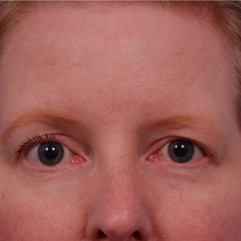 45-54 year old woman treated with Eyelid Surgery before 3168762