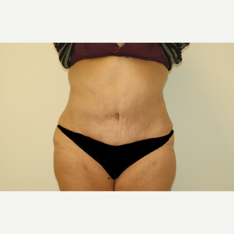 55-64 year old woman treated with Tummy Tuck after 3281307