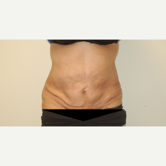 55-64 year old woman treated with Tummy Tuck before 3281307