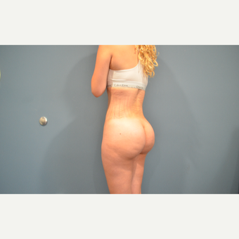 25-34 year old woman treated with Brazilian Butt Lift after 3495506