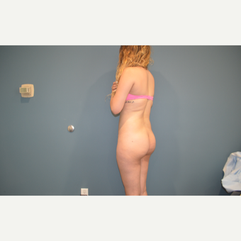 25-34 year old woman treated with Brazilian Butt Lift before 3495506
