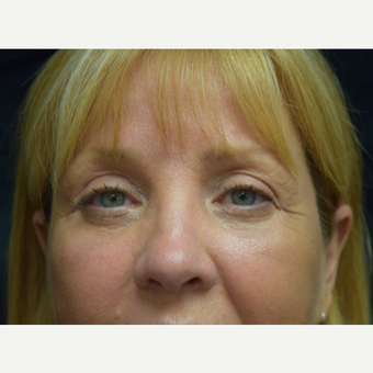 45-54 year old woman treated with Eyelid Surgery and Eye bags Treatment after 3179550