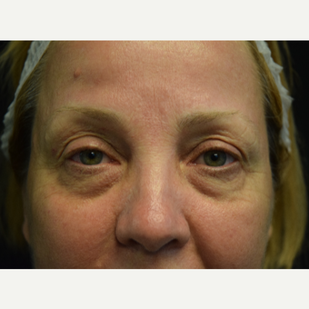 45-54 year old woman treated with Eyelid Surgery and Eye bags Treatment before 3179550