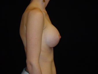25-34 year old woman treated with Breast Augmentation 3808913