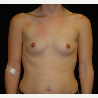 25-34 year old woman treated with Breast Augmentation before 3808913